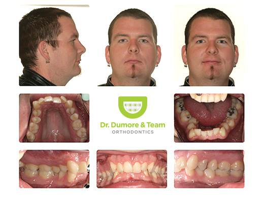 Before And After Gallery Of Dr Dumore S Patients Winnipeg