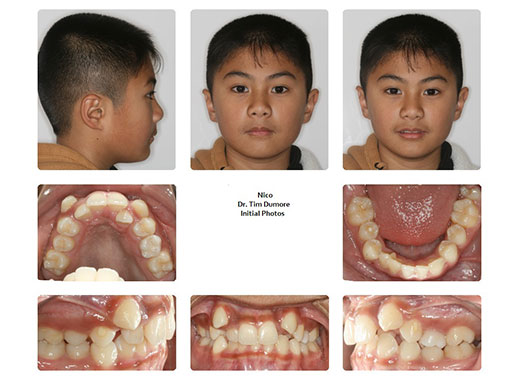 Before And After Gallery Of Dr Dumore S Patients Winnipeg Orthodontist Dr Dumore Orthodontics