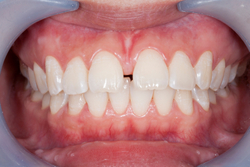 Close up of teeth with gap in need of orthodontic treatment at Dr. Tim Dumore & Team in Winnipeg, Manitoba.