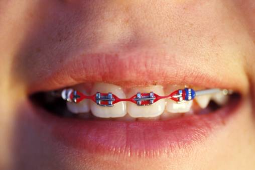 Close up of smile with red traditional metal braces in Winnipeg, Manitoba Canada.